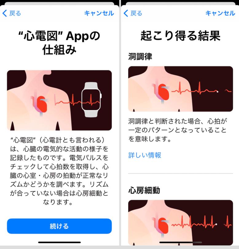 心電図APP 説明